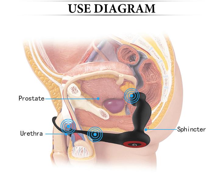 Como se utiliza un masajeador de prostata
